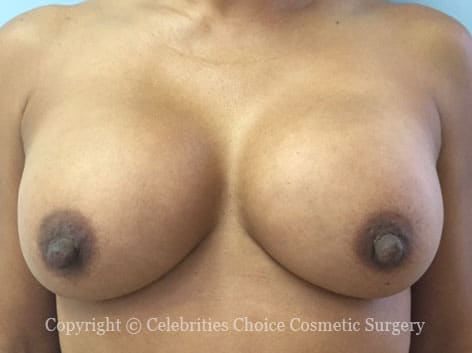 Before-RevisionalBreastSurgery8 b