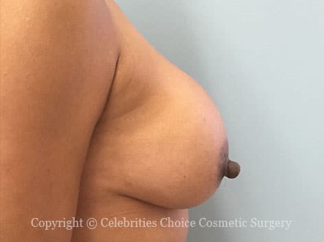 Before-RevisionalBreastSurgery8