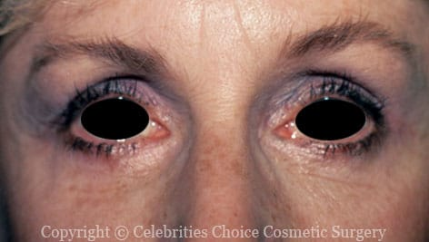 After-Blepharoplasty8