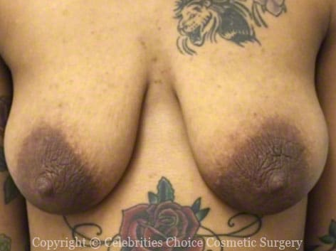 Before-blMastopexy8