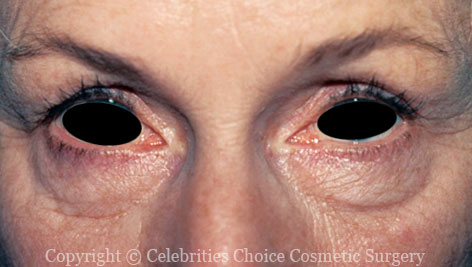 Before-Blepharoplasty8