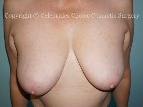 Before-BreastLiftDSC09804
