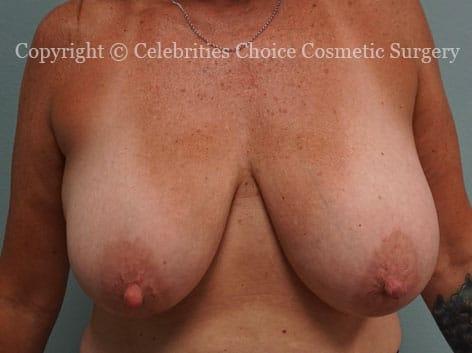 Before-BreastReductionDSC09309