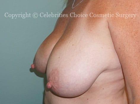 Before-BreastReductionDSC09311