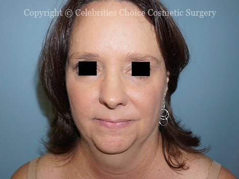 Before-faceliftDSC04279-2