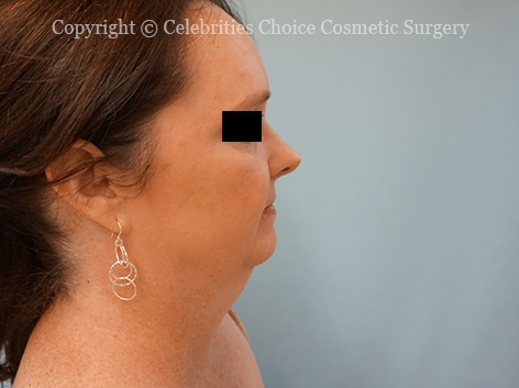 Before-faceliftDSC04279