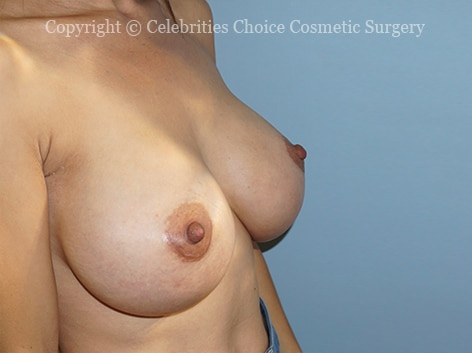 After-breast aug set1