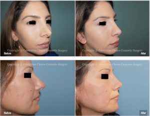 Revision Rhinoplasty Celebrities Choice Cosmetic Surgery Dr Trevisani