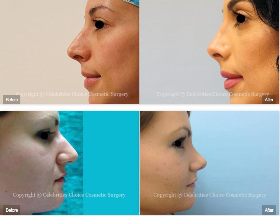 nasal tip and lip lift