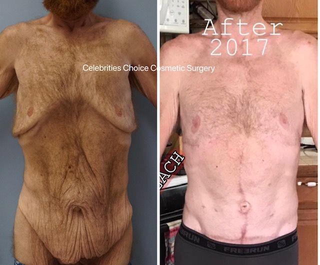 Skin Removal Surgery Orlando