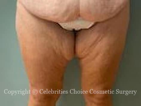 Before-ThighLift0-3