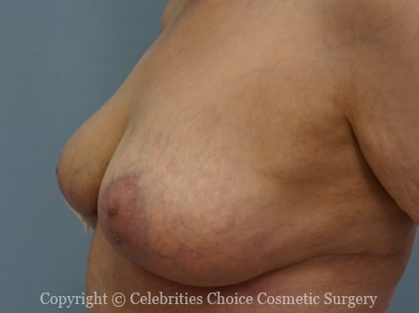 After-Breast_reduction_breast_lift_1004