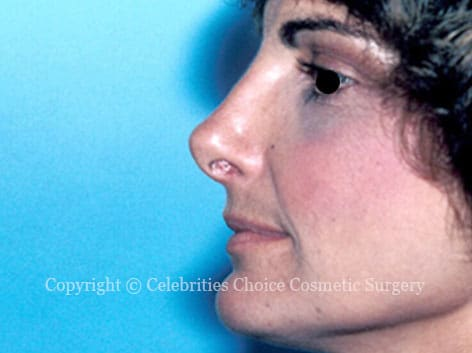 After-Nose Job 1