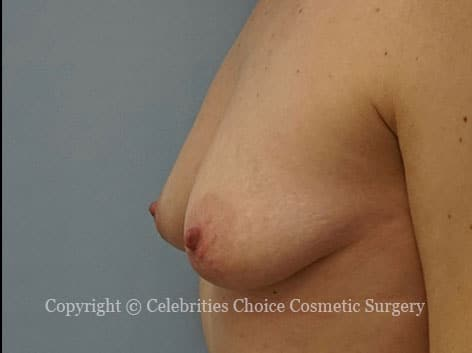 Before-augmentation27b