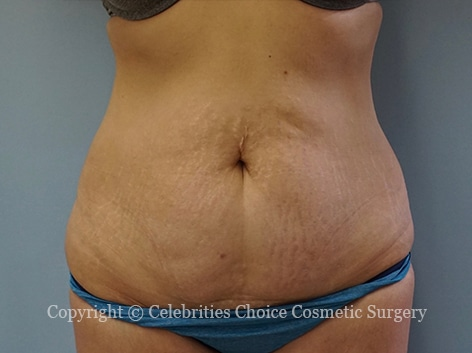 Before-tummytuck23
