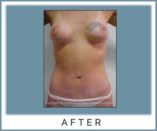 Breast Lift, Tummy Tuck with Muscle Tightening -post several pregnancies, 3 months post op