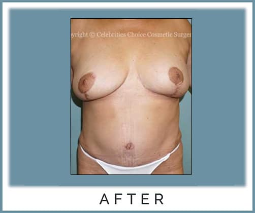 Breast Implant Removal, Breast Lift with Areola Reduction, Extended Tummy Tuck With Muscle Tightening