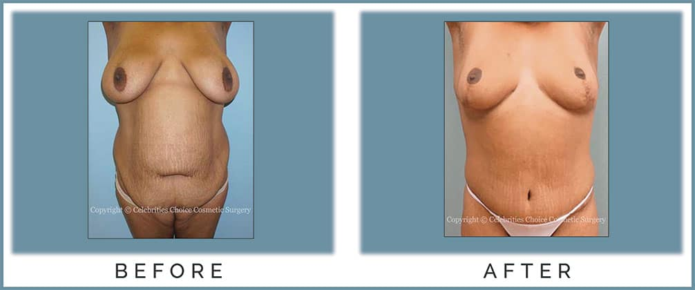 Breast Reduction/ Lift, Extended Tummy Tuck with Hip Liposuction