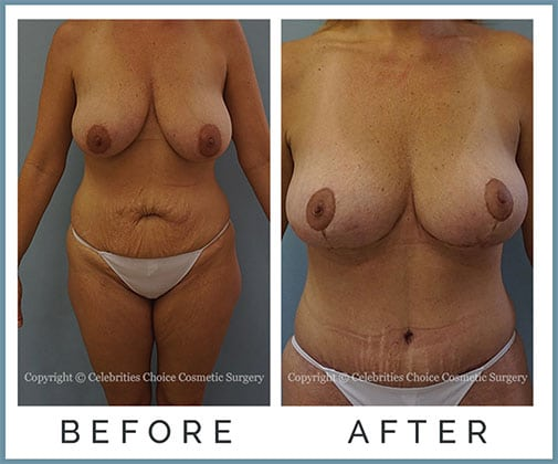 Extended Breast Lift, Extended Tummy Tuck with Muscle Tightening- post several pregnancies, 1 month po