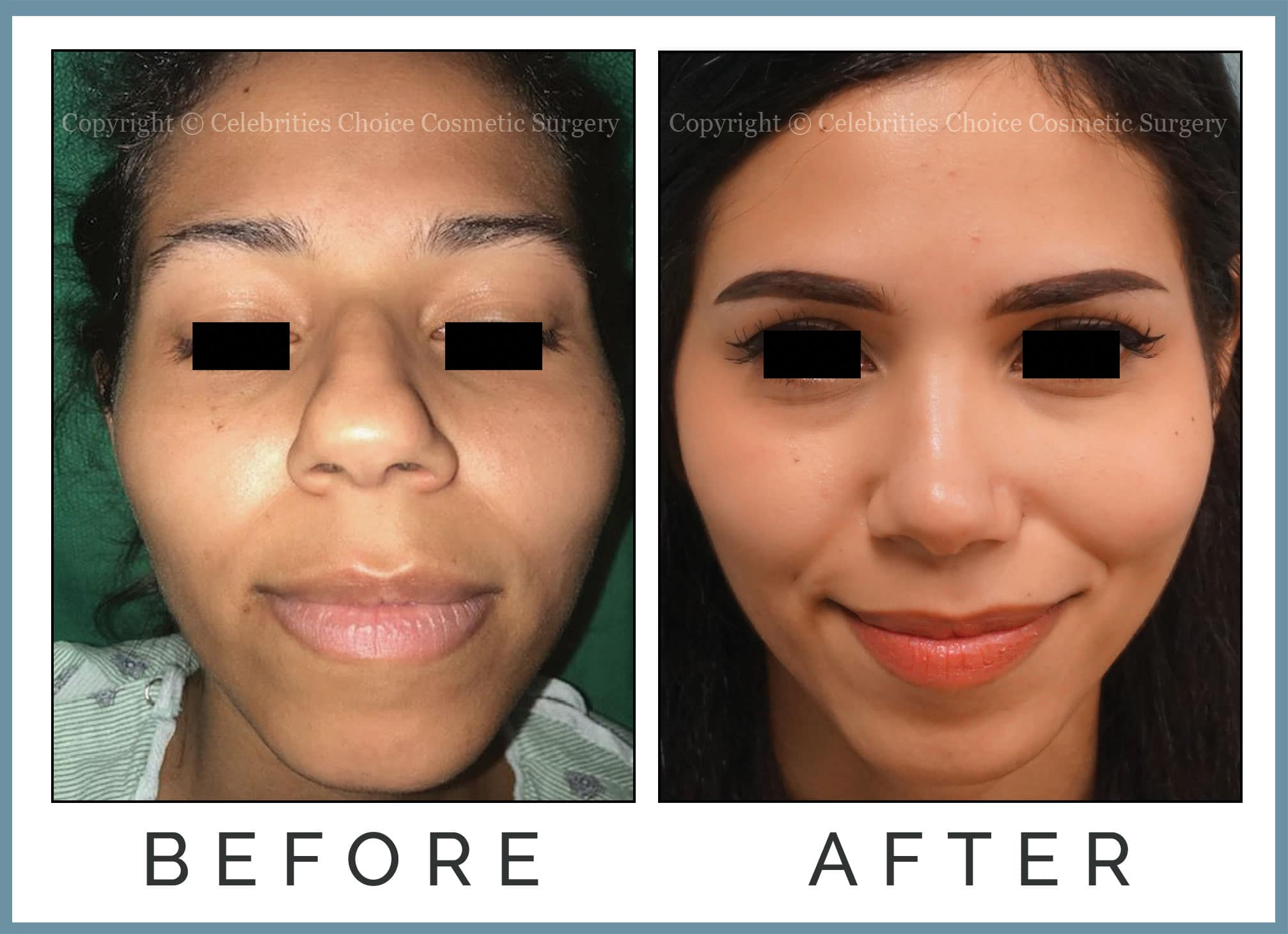 Reduction Rhinoplasty performed through a closed technique