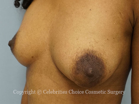 Before-BreastReconstruction