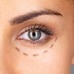 cosmetic-eyelid