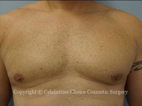 After-gynecomastia3_2