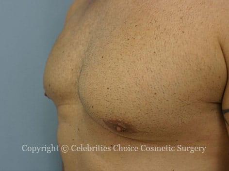 After-gynecomastia3