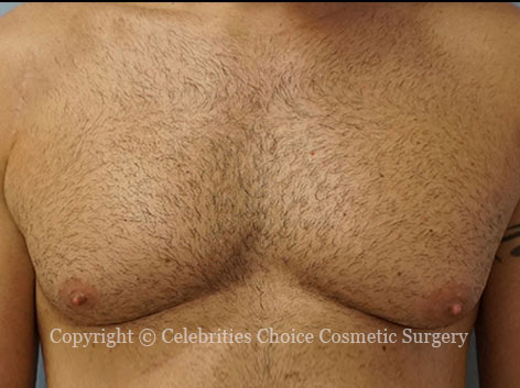Before-gynecomastia3_2