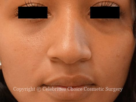 Before-nose35_2