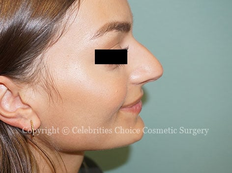 Before-nose_8813b
