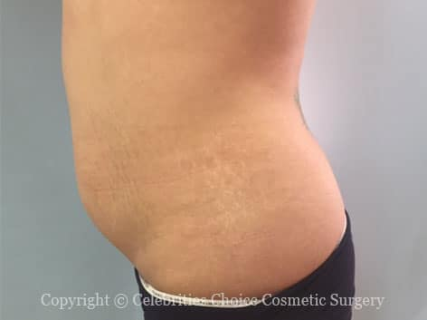 Before-tummytuck21-2